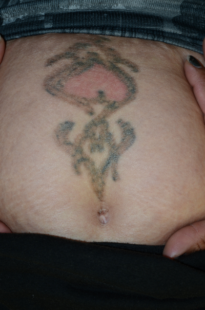 Before and After Laser Tattoo Removal Pictures